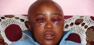 <!--:fa-->مردسالاری بیمار و تجاوز به زنان لزب در آفریقا<!--:-->