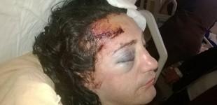<!--:fa-->حمله ی ترنس فوبیک در مرسین ترکیه یک نفر را روانه ی بیمارستان کرد<!--:-->